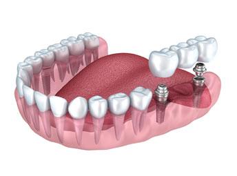Couronnes dentaires et ponts